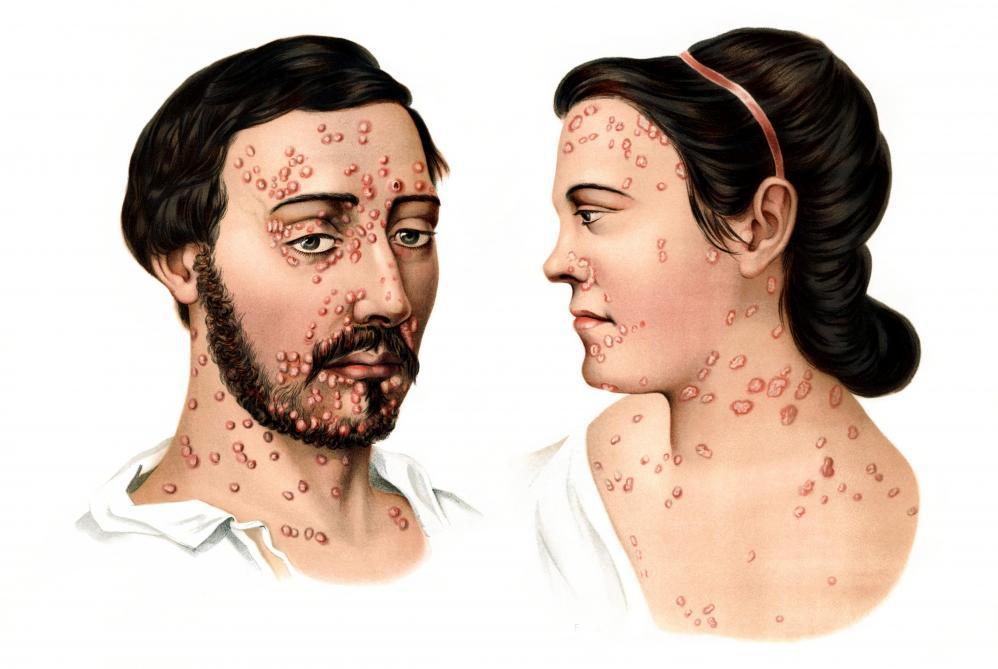 Syphilis: 276% de hausse en dix ans en Belgique