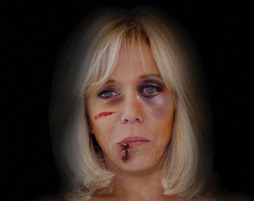 Brigitte et Michelle affichées le visage tuméfié