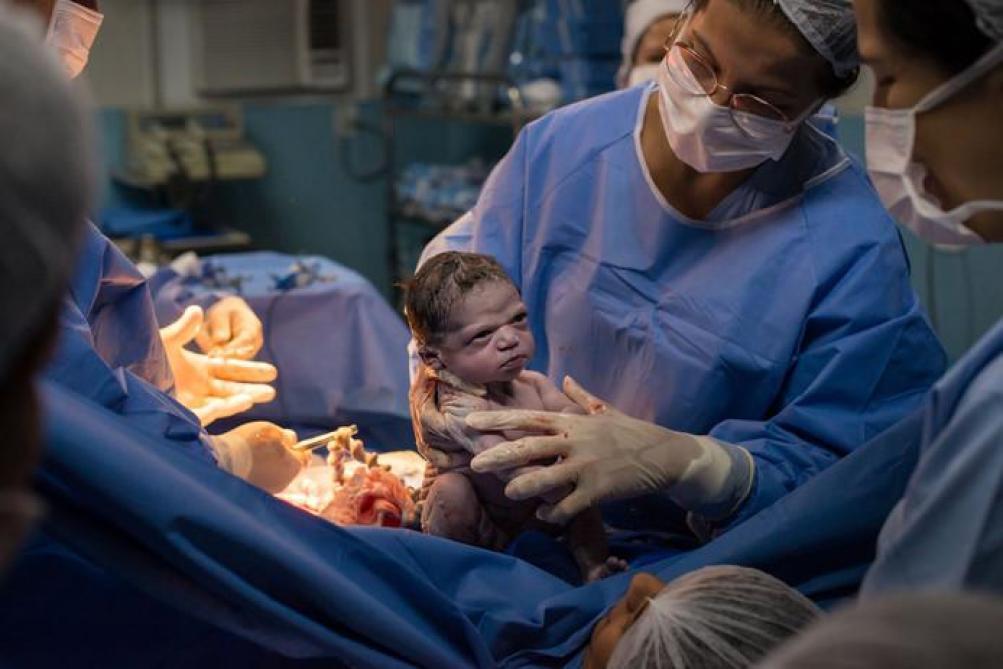 Le regard de ce bébé à la naissance fait le buzz sur les réseaux sociaux